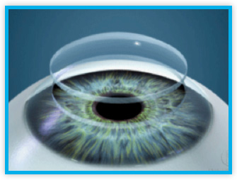 Corneal Transplantation Ophthalmic Surgeons Laser Eye